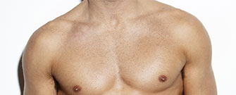 Chest Implants