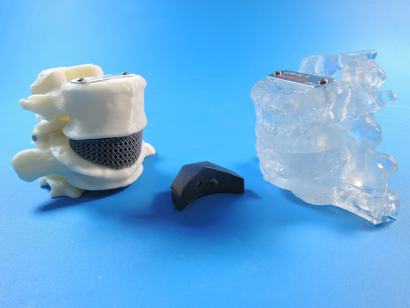 3D Printed Spine Cage Implant.jpg